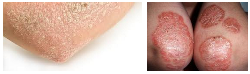 What Does Psoriasis Look Like